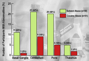 Inhalant and Cocaine Abusers With Subcortical Abnormalities, by Brain Region Affected - Graph
